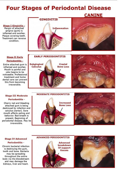 four-stages-of-periodontal-disease